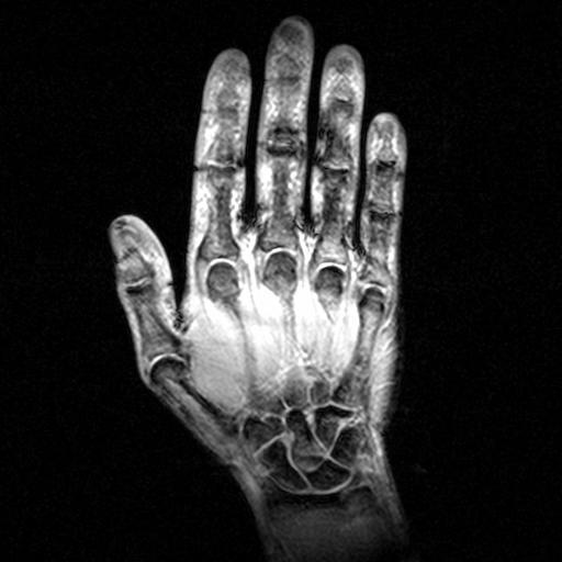 Body Mri Hand